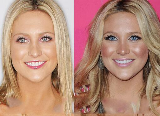 Kristin Cavallari Plastic Surgery