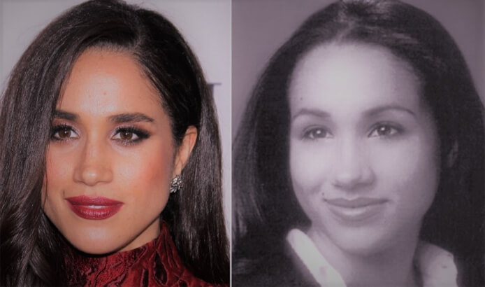 Meghan Markle Nose Surgery