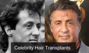 Top 20 Famous Celebrity Hair Transplants Before  And After