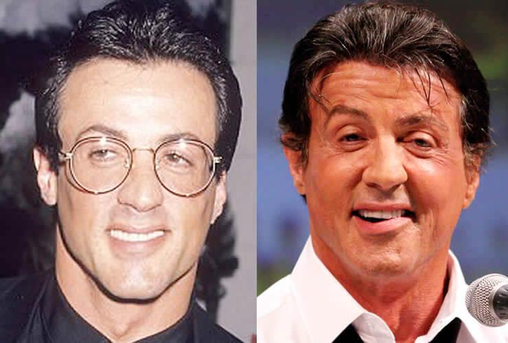 Sylvester Stallone Hair Transplant